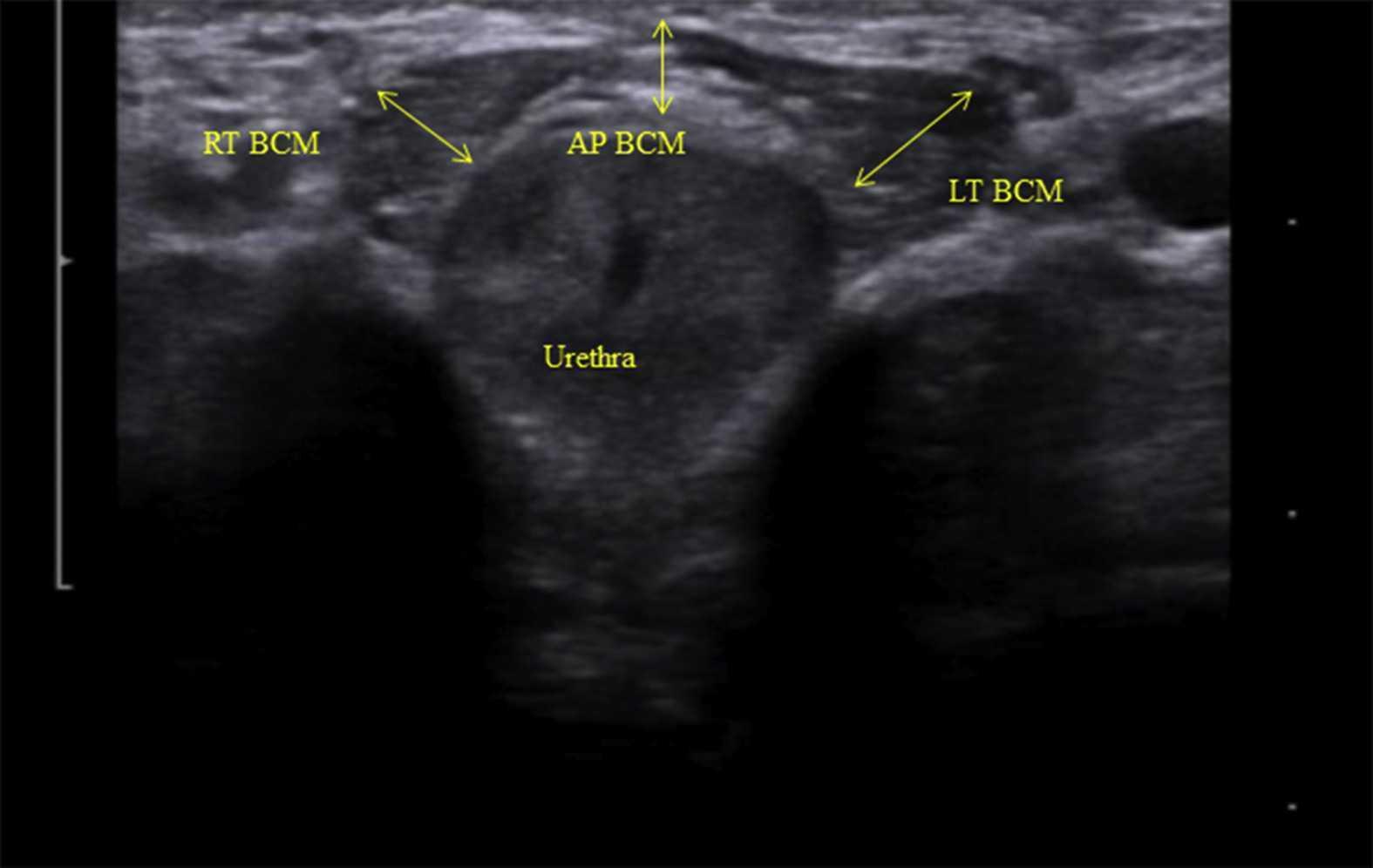 Rehabilitative Ultrasound Imaging for Men's Pelvic Health