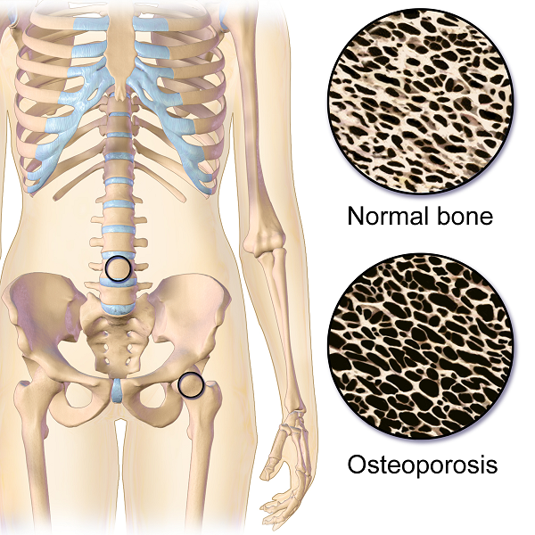 Fractures for Females: Pregnancy-Associated Osteoporosis