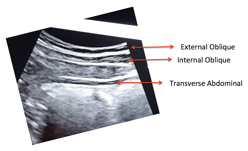 View of the right lateral abdominal wall at rest